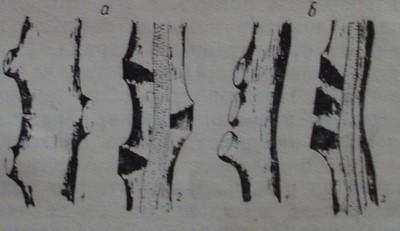 Разположение на раните по рамената