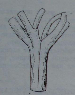Вилообразно разклоняване, което става причина за загиване на плододаващото овощно дърво