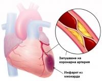 Симптоми на инфаркт при жени над 50 годишна възраст