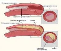 11 ефективни начина за предпазване от образуване на висок холестерол