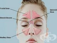 Главоболие от синузит – причини