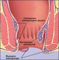 Хемороидален пролапс – обобщена информация за заболяването