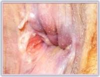 Хомеопатични средства за лечение на рана на аналния канал