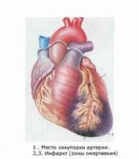 Информация за основните симптоми на инфаркт на миокарда