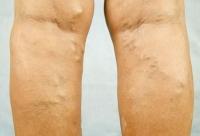 Как може да се проведе лечение при разширени вени?