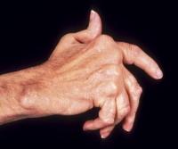 Какво да правим при подагра и артрити