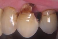 Зъбен кариес - факти и съвети