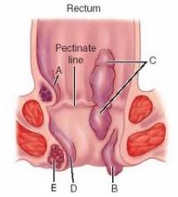 Кои са общите симптоми и усложнения при поява на хемороиди?
