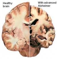 Може ли човешкият мозък да ръждяса?
