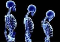 Намалена костна плътност – начини за лечение на заболяването