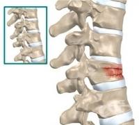 Някои важни факти за остеопорозата