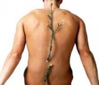 Още информация за причините и симптомите при остеопороза