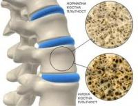 Остеопороза - научете повече за причините, симптомите и лечението на заболяването