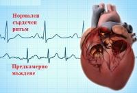 Предупредителни сигнали и нужда от спешна помощ при предсърдно мъждене