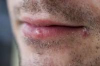 Причини и фактори за появата на гъбички при мъжете