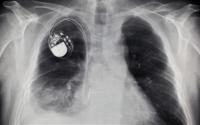 Революционен кардиостимулатор във Великобритания