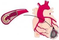 Симптоми на сърдечна атака при жените