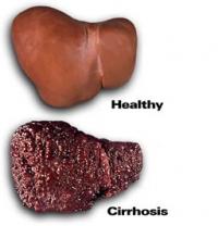 Увреждания на черния дроб и как да ги избегнем