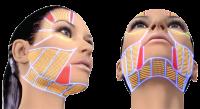 Въпроси и отговори, свързани с HIFU лифтинг за лице и тяло