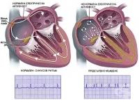 Видове сърдечна аритмия. Камерна аритмия