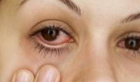 Вирусните инфекции са опасни и за очите!