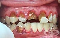 Връзка между гниене на зъбите и сърдечните заболявания