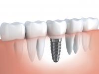 Зъбните импланти през годините