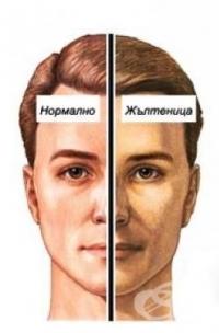 Защо човешкият черен дроб е толкова уязвим от хепатит